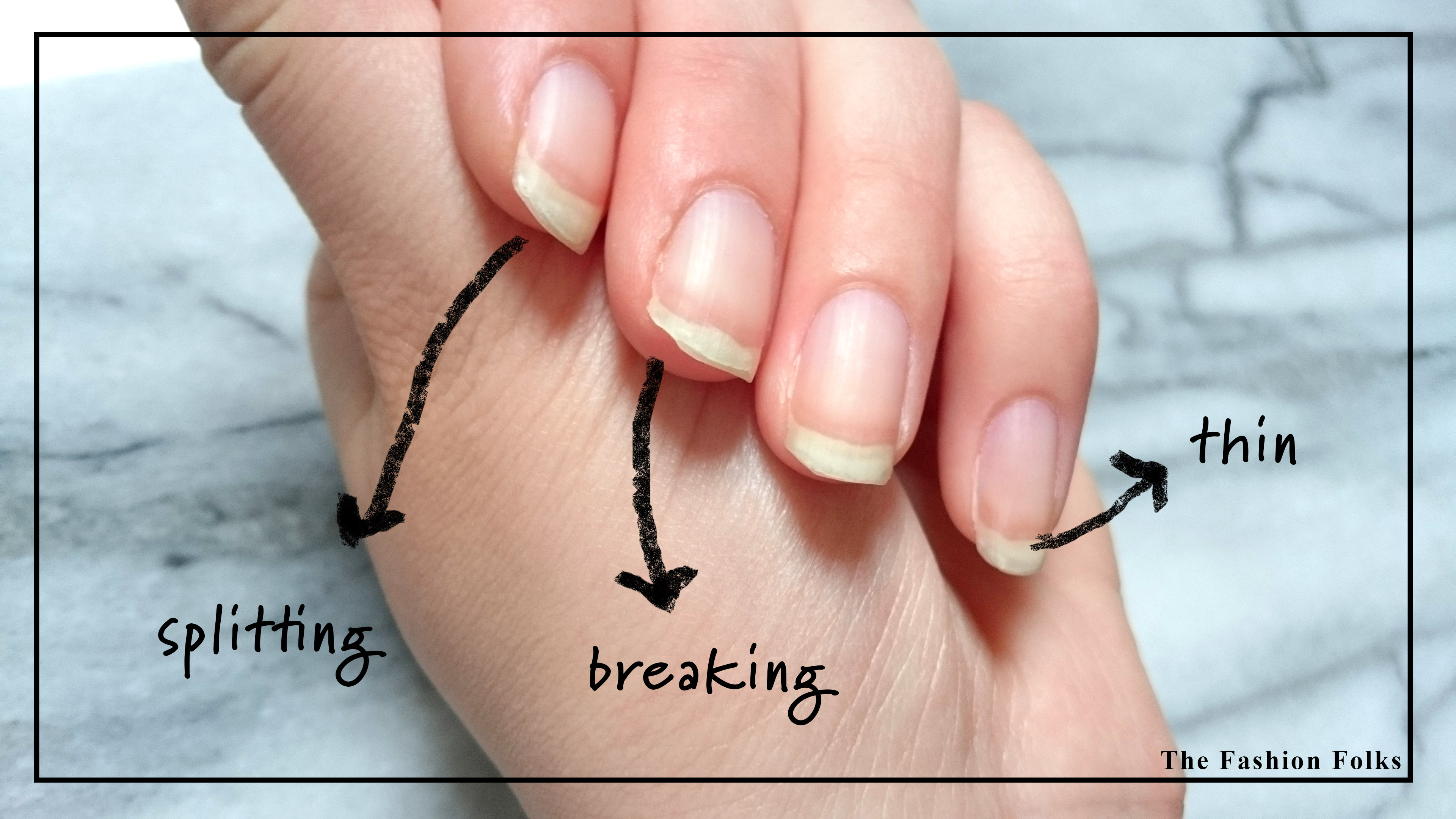 tips for healthy nails1
